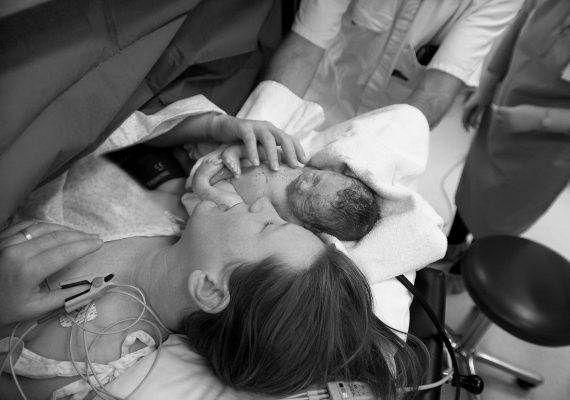 ניתוח קיסרי באפס הפרדה